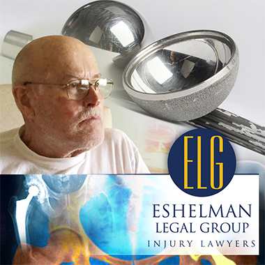 Metal on Metal Hip Replacement Implant, Eshelman Legal Group, Canton Injury Lawyers